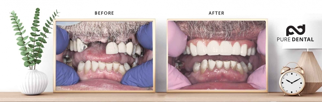 Dr. Keith Vibert Transforms Lives With the Four Ever Smile™ System