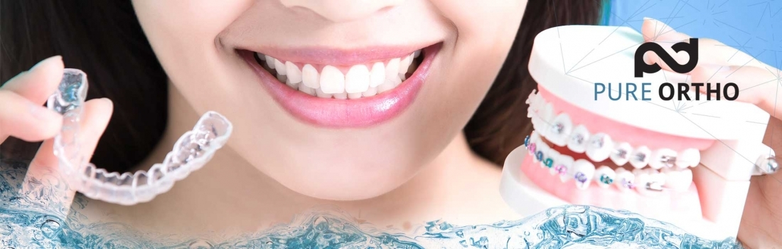 Digital Orthodontics: the most advanced technology for a perfect smile